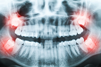 Impacted Teeth Manhattan Maxillofacial Surgery Group NY 10022