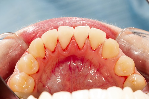 Can You Struggle with Gum Disease Without Natural Teeth? Yes!